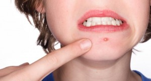 Five Reasons Why The Raw Food Diet Is Recognized To Cure Acne